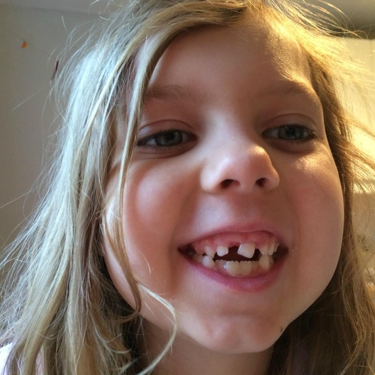 Mia's teeth